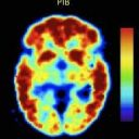 Another Nail in the Coffin for Anti-Amyloid Development in Alzheimer's